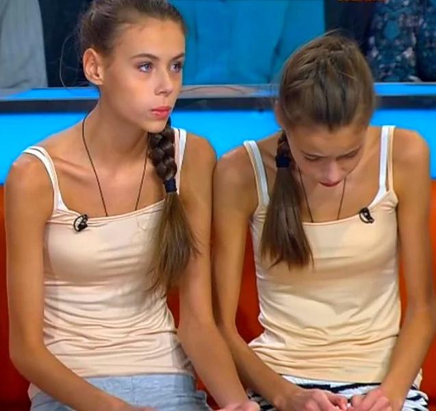 Фото №1 - Как сейчас выглядят и живут близняшки Леденевы, которые чуть не умерли от анорексии