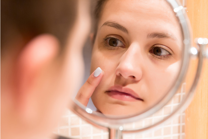 Фото №3 - Молодо-зелено: правила ухода за подростковой кожей
