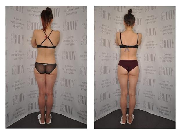Фото №6 - Манупластика: как похудеть с помощью массажа