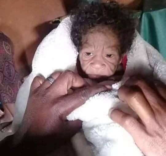 Фото №1 - Родилась бабушкой: как выглядят дети с болезнью Бенджамина Баттона