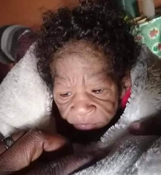 Фото №2 - Родилась бабушкой: как выглядят дети с болезнью Бенджамина Баттона