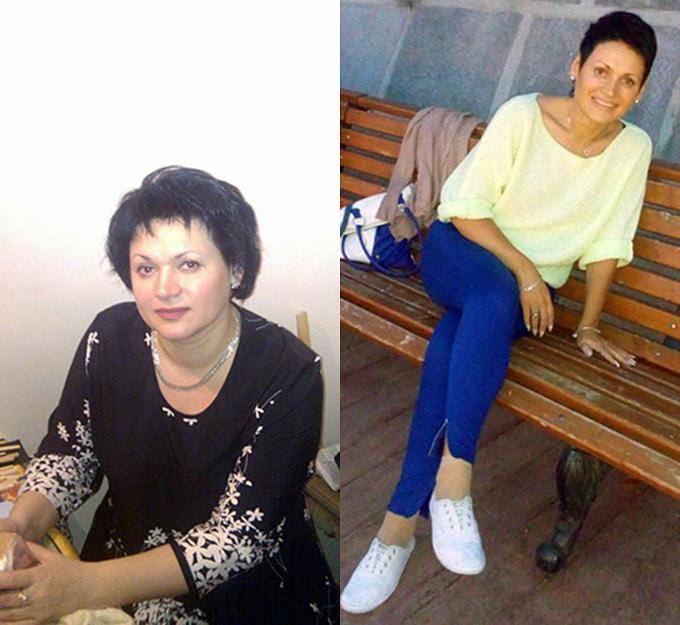 Ефименко Екатерина, пациентка Михаила Гаврилова, до и после курса лечения