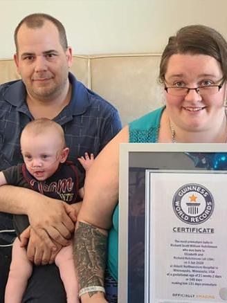 Фото №3 - Как сейчас выглядит самый недоношенный в мире ребенок, рожденный с весом 337 г