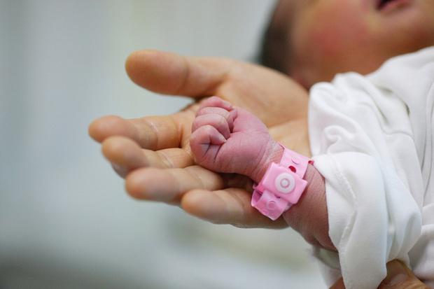 Фото №2 - Желтуха у новорожденных: что мне с тобой делать, золотце мое?
