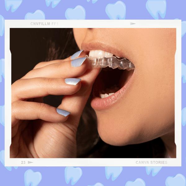 Фото №1 - Как покупать онлайн капы для зубов: что нужно знать, чтобы не потратить деньги зря