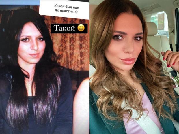 Невеста шеф-повара Константина Ивлева Валерию Куденкову показала фото как выглядела до пластической операции: фото до и после