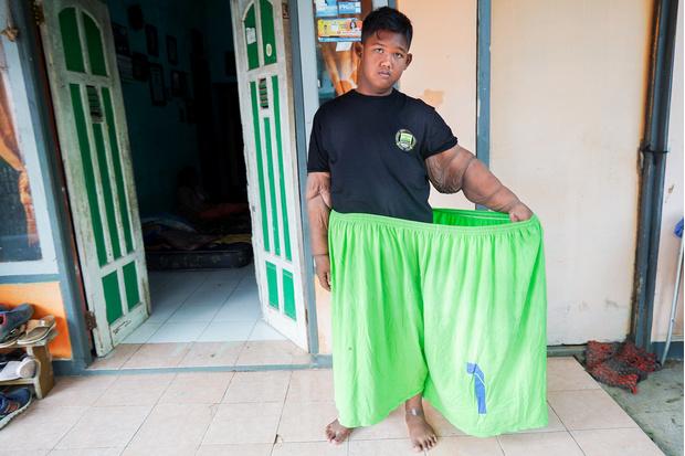 Фото №1 - Осталась половина: самый полный ребенок в мире похудел на 100 кг