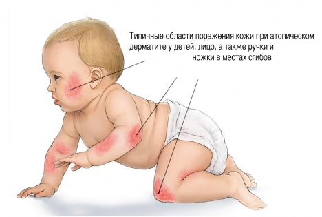 Атопический дерматит у детей симптомы
