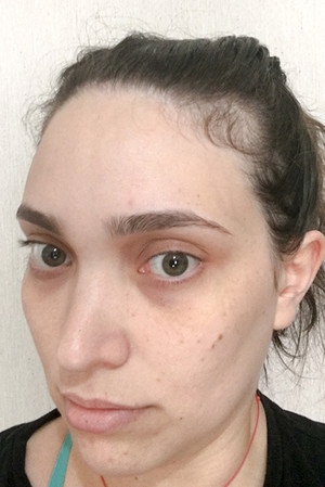Фото №4 - Профессиональная травма: блогер лишилась волос из-за своей же диеты
