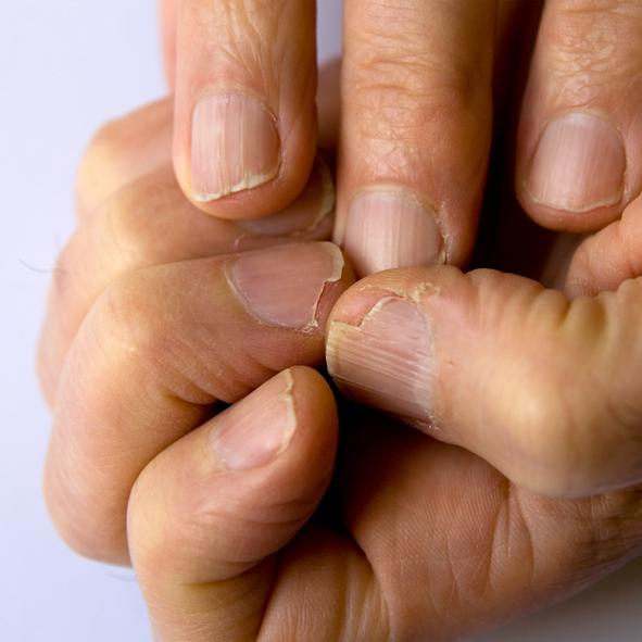 Ломкие ногти лечение явлинский запой