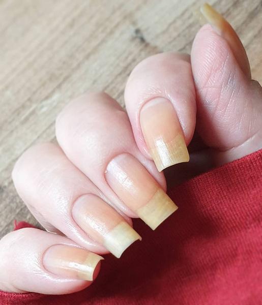 Фото №1 - Почему желтеют ногти и как вернуть им здоровый цвет