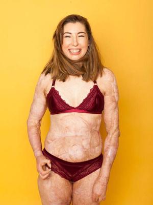 Фото №1 - Обгоревшая на пожаре девушка не стесняется своих шрамов и показывает тело в бикини