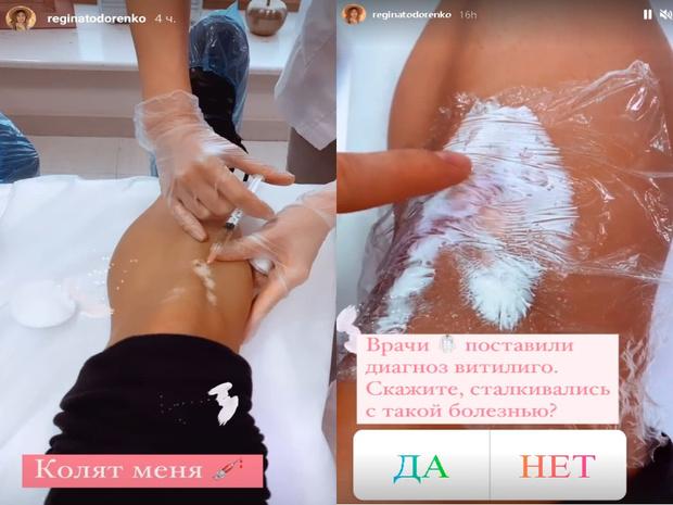 Регина Тодоренко инстаграм, Регина Тодоренко витилиго, Регина Тодоренко фото