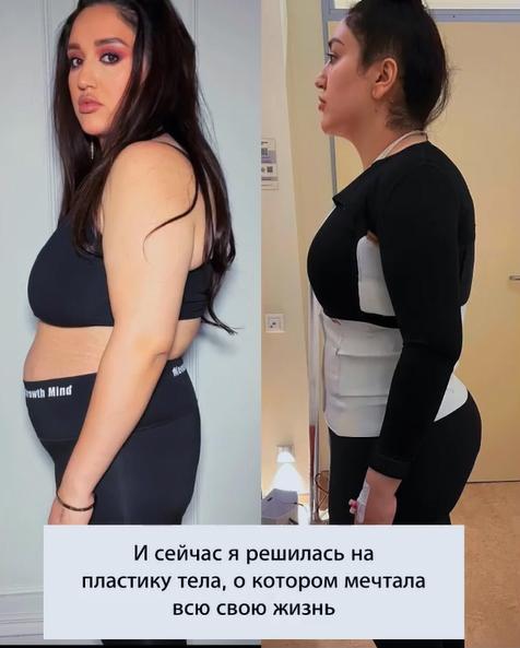 Фото №2 - «Просто огромный кусок»: Гоар Аветисян столкнулась с серьезным осложнением после липосакции