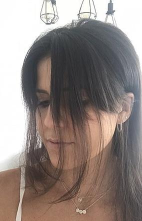 выпадение волос после коронавируса что делать