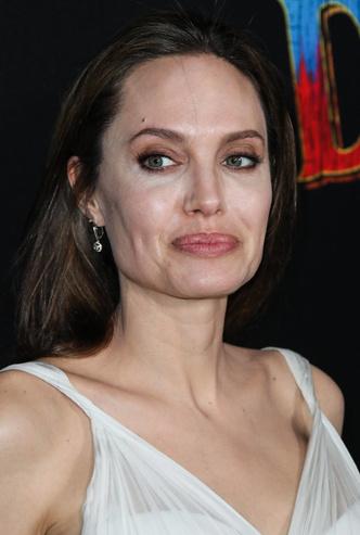 Анджелина Джоли, пластические операции, комки Биша, фото