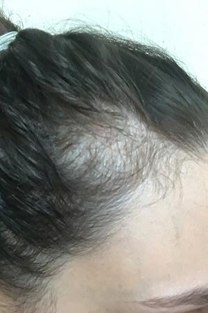 Фото №2 - Профессиональная травма: блогер лишилась волос из-за своей же диеты