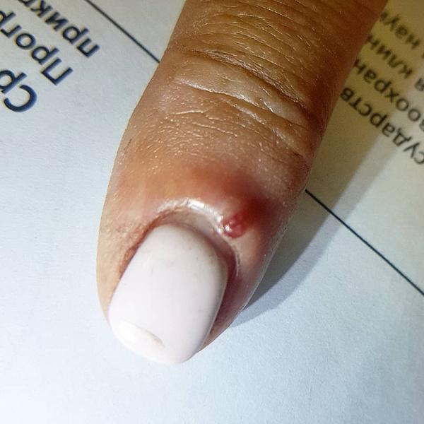 Фото №3 - О чем говорят красные точки-родинки на теле, рассказала дерматолог Мошкова