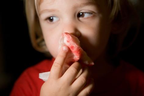 Что делать, если у ребенка из носа идет кровь