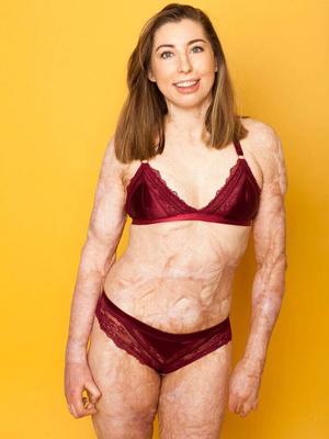 Фото №2 - Обгоревшая на пожаре девушка не стесняется своих шрамов и показывает тело в бикини