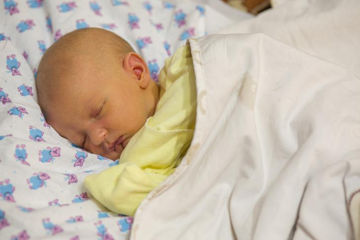 желтушка у новорожденных, фото, причины, когда должна пройти, лечение, последствия