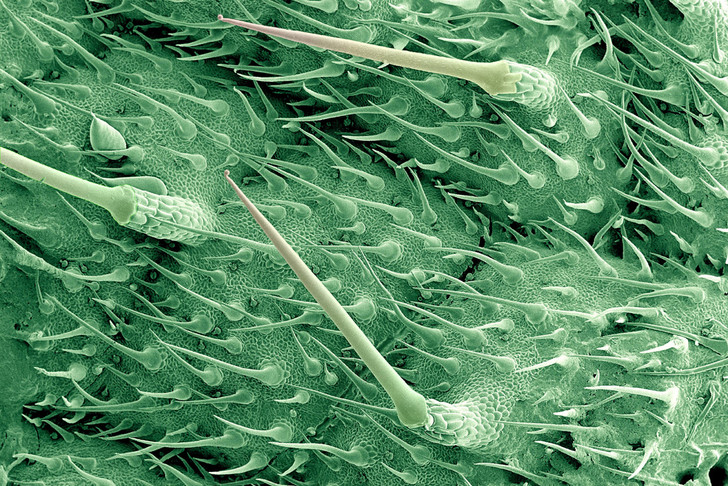 Фото №1 - Природный шприц: листья крапивы под микроскопом