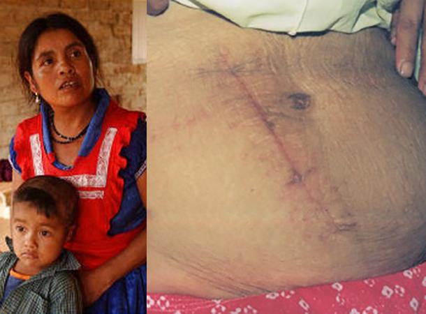 Фото №3 - Спасение утопающих… 5 историй людей, которым пришлось делать операцию самим себе