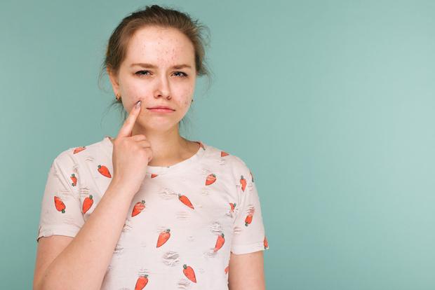 Ветрянка у взрослых симптомы и лечение
