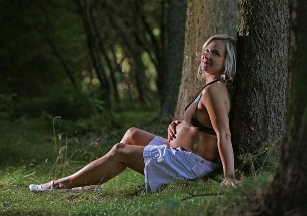 Фото №3 - Варикозная болезнь и беременность