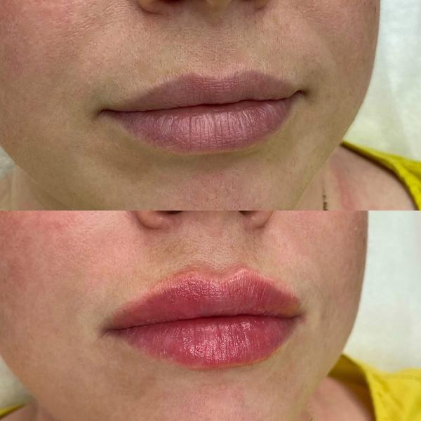 Фото №2 - Результат поражает: реальные фото женщин до и после увеличения губ