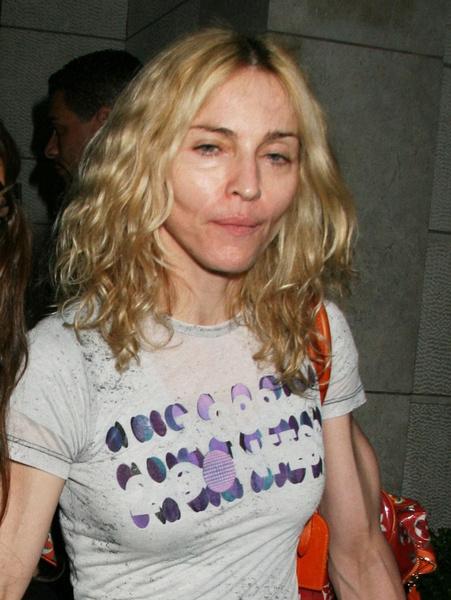 Фото №15 - Как тело Мадонны наказало ее за десятилетия суровых нагрузок и диет
