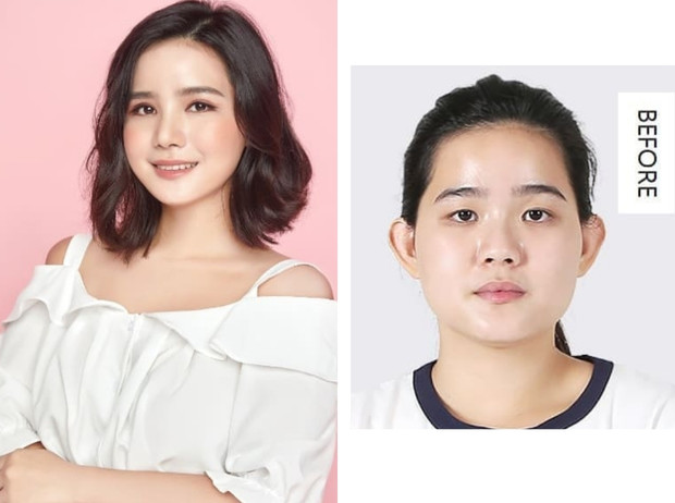 Фото №6 - Без ума от пластики: как кореянки меняют себя до неузнаваемости