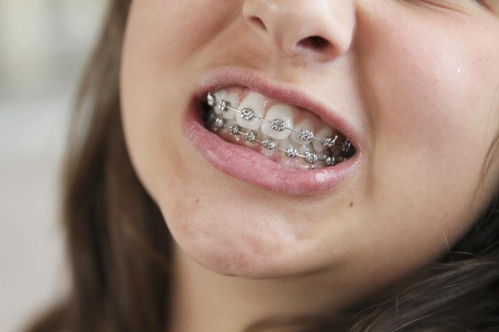 расходятся зубы