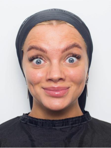 ботокс для лица до и после фото отзывы последствия