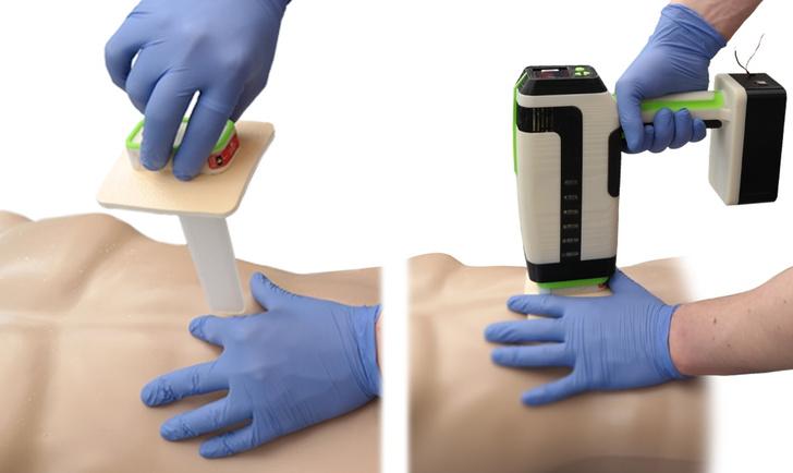 Фото №1 - Британский студент создал устройство для «запечатывания» ножевых ран
