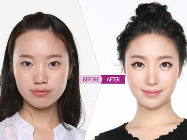 Фото №3 - Без ума от пластики: как кореянки меняют себя до неузнаваемости