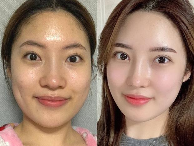 Фото №4 - Без ума от пластики: как кореянки меняют себя до неузнаваемости