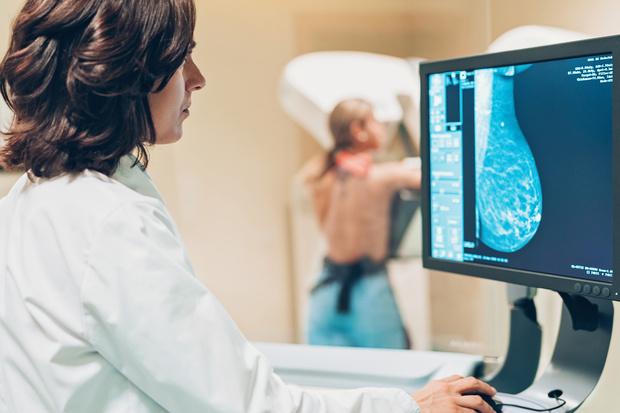 самообследование молочных желез рекомендации памятка, самообследование молочной железы картинки