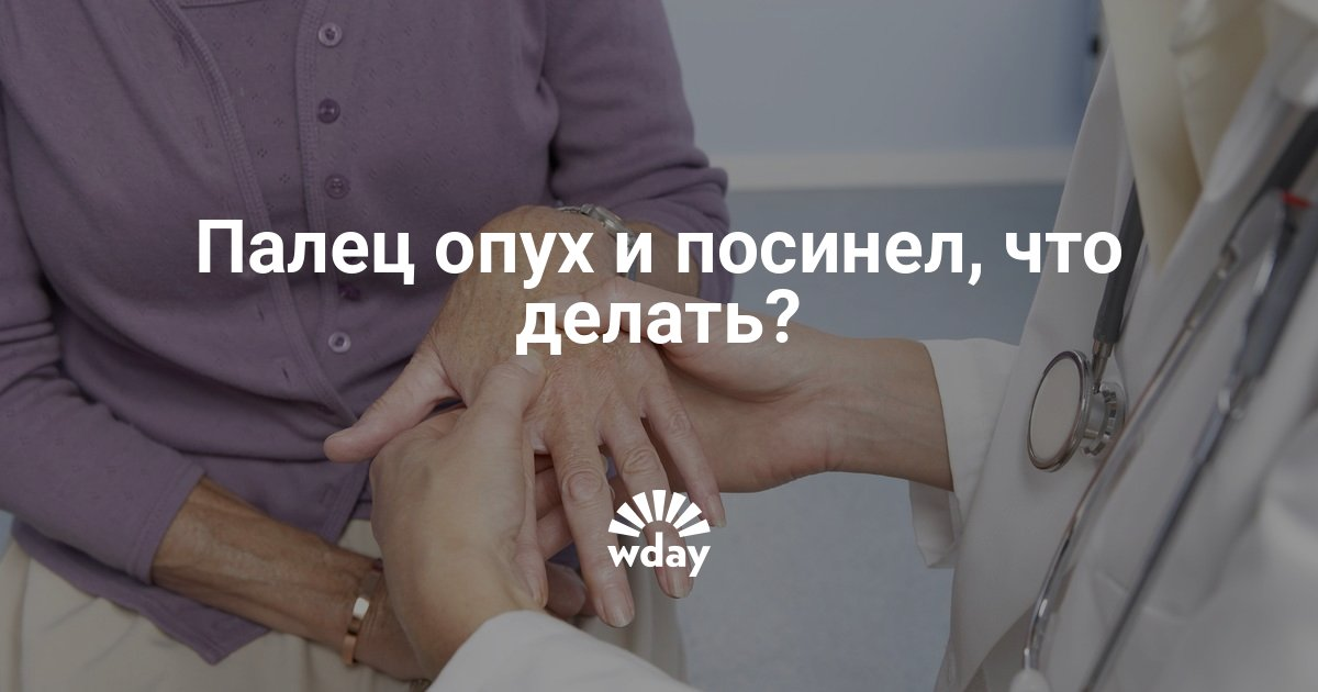 Посинел палец на руке: возможные причины и лечение. Палец на руке без причины опух, посинел и болит