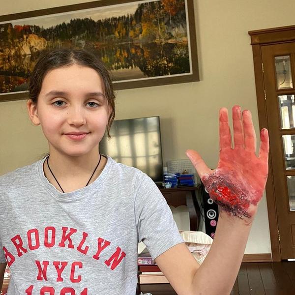Фото №1 - 10-летняя дочь Басты напугала окровавленной рукой