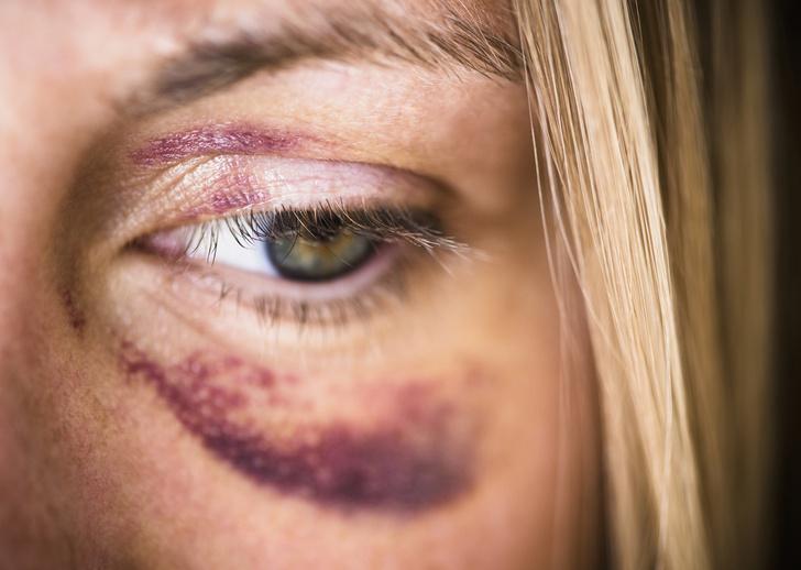 гематома под глазом как избавиться