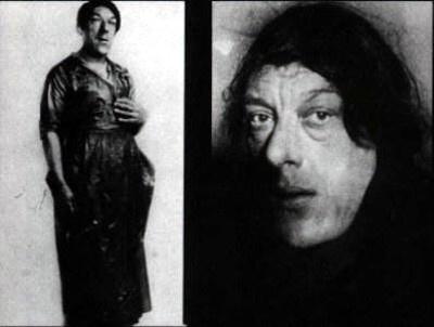 Фото №3 - История «самой уродливой женщины в мире», которая после редкой болезни из красавицы превратилась в цирковое посмешище