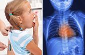 Лекарства от обструктивного бронхита у детей thumbnail