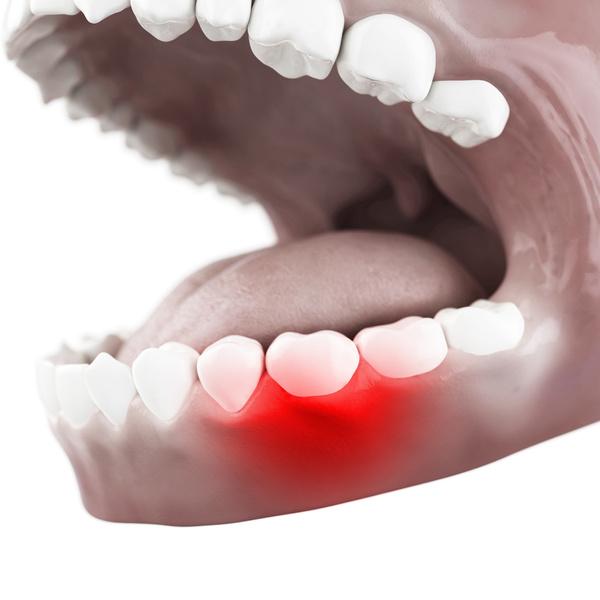 Что делать, если застудил зубы?
