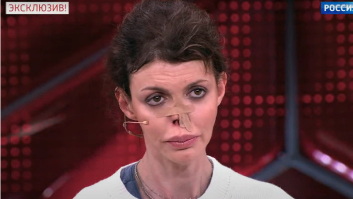 Алиса Аршавина: фото, аутоиммунное заболевание, жена Андрея Аршавина