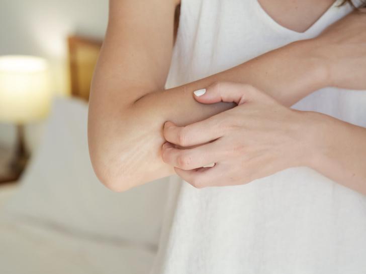 Фото №3 - О каких болезнях может рассказать сухая кожа на локтях