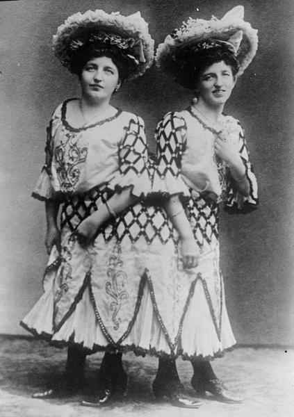 Фото №3 - Две матери одного сына: как сиамские близнецы Блажек жили, любили и родили