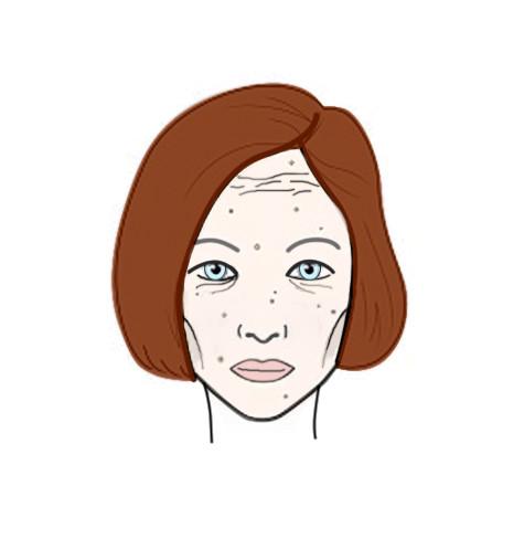 Фото №2 - Как еда и напитки отражаются на нашей коже: результат на лицо