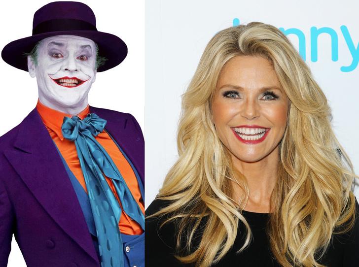 Фото №1 - Звезды с неудачной пластикой губ: «улыбка Джокера»