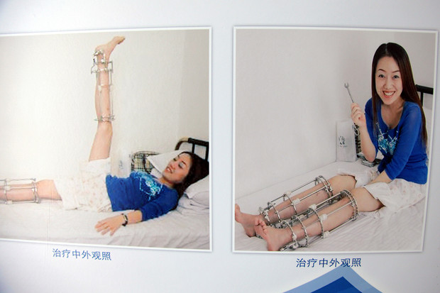 Фото №4 - Делай ноги! Как вырасти на 10 сантиметров и даже больше